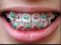 braces san antonio